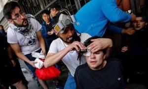 ddhh-heridos-oculares-768x464